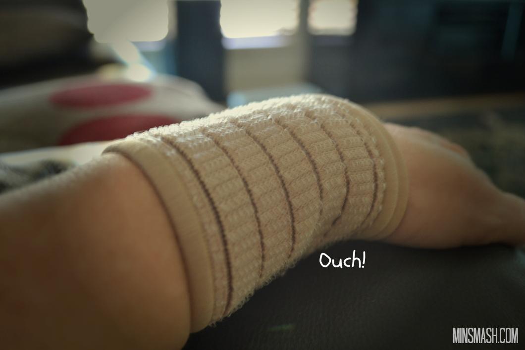 tendonitis, wrist
